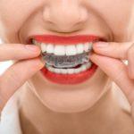centro-odontostomatologico-copppola-dentista-odontoiatra-chirurgo-ortognatodonzia