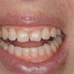centro-odontostomatologico-coppola-dentista-gallarate-dentista-varese-terapia-allungamento-corona-001