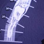 centro-odontostomatologico-coppola-terapia-chirurgia-005