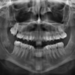centro-odontostomatologico-coppola-terapia-chirurgia-007