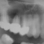 centro-odontostomatologico-coppola-terapia-chirurgia-009