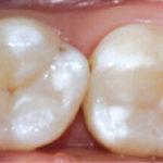 centro-odontostomatologico-coppola-terapia-conservativa-denti-002