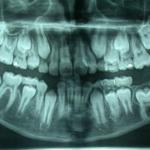 centro-odontostomatologico-coppola-terapia-endodonzia-esposizione-chirurgica-001