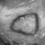 centro-odontostomatologico-coppola-terapia-implantologia-avanzata-003