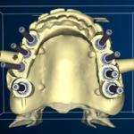 centro-odontostomatologico-coppola-terapia-implantologia_computer_guidata-001