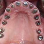 centro-odontostomatologico-coppola-terapia-implantologia_computer_guidata-002
