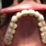 centro-odontostomatologico-coppola-terapia-implantologia_computer_guidata-003
