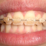 centro-odontostomatologico-coppola-terapia-ortognatodonzia-004