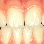 centro-odontostomatologico-coppola-terapia-ortognatodonzia-006
