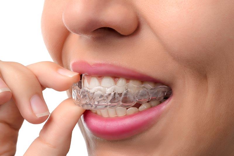 centro-odontostomatologico-coppola-dentista-gallarate-dentista-varese-terapia-gnatologia-bite