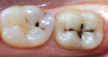 centro-odontostomatologico-coppola-terapia-conservativa-denti-001