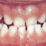 centro-odontostomatologico-coppola-terapia-ortognatodonzia-001