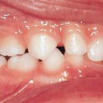centro-odontostomatologico-coppola-terapia-ortognatodonzia-003