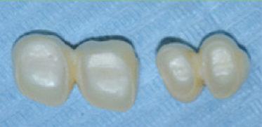 centro-odontostomatologico-coppola-terapia-protesi-denti-002